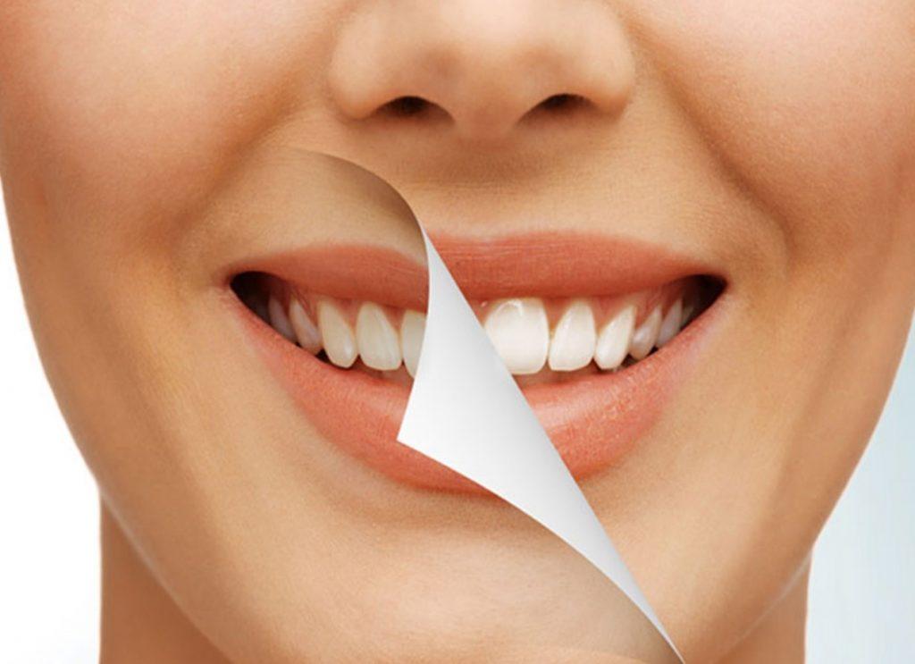 انواع درمان زیبایی لبخند
