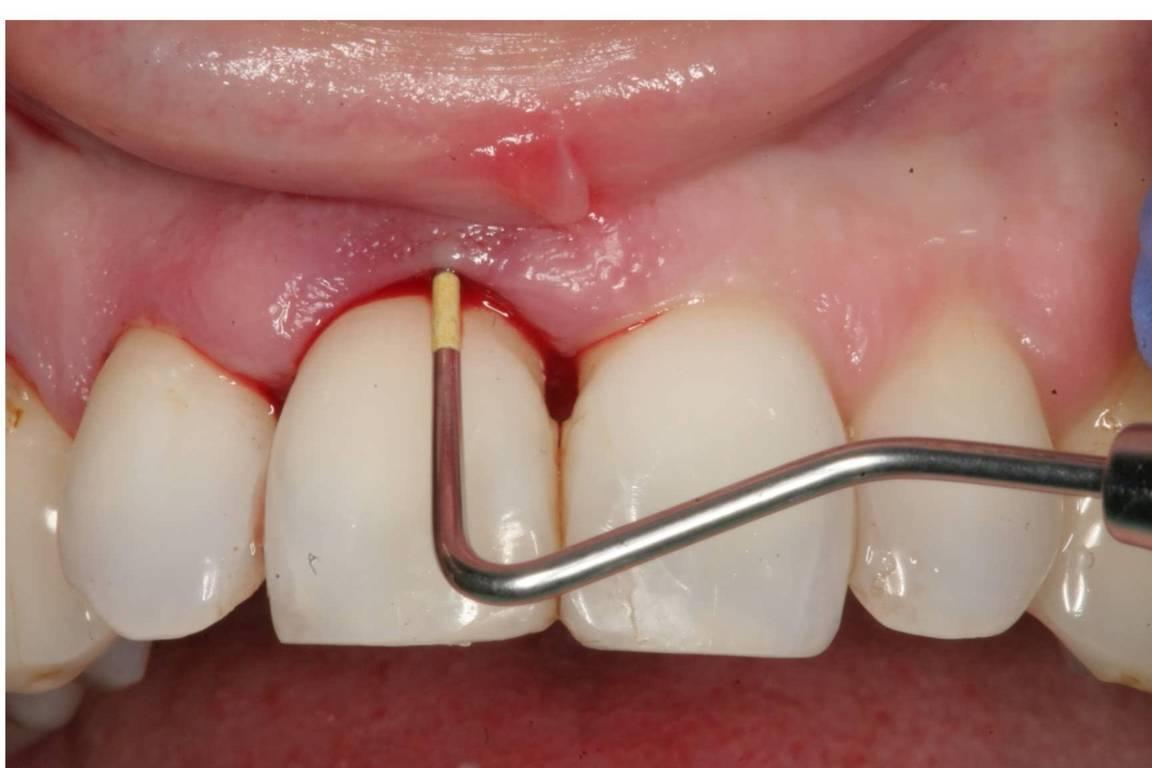 جرم دندان چیست و چگونه تشکیل میشود