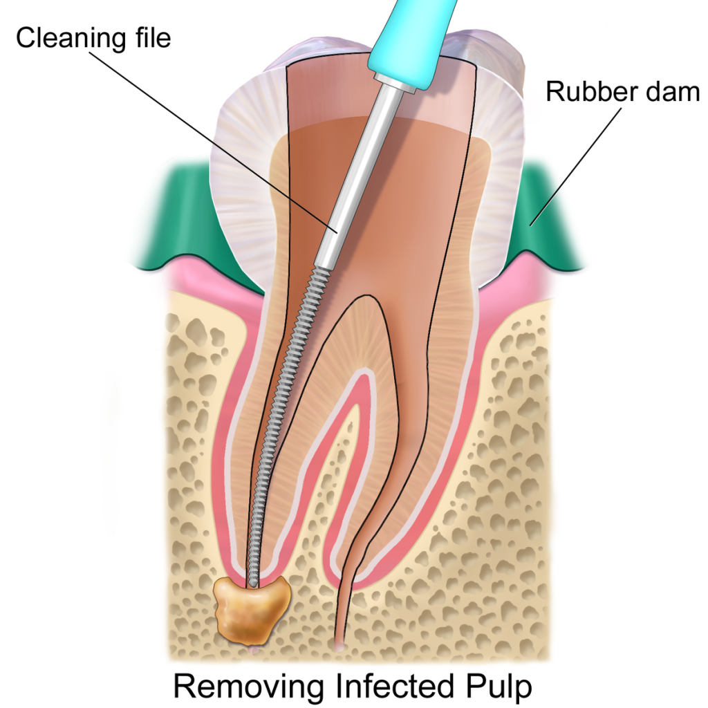 شکل دهی دیواره ریشه دندان با فایل