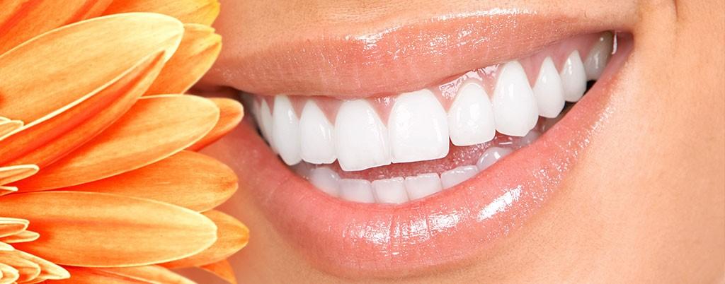 فواید سفید کردن دندان