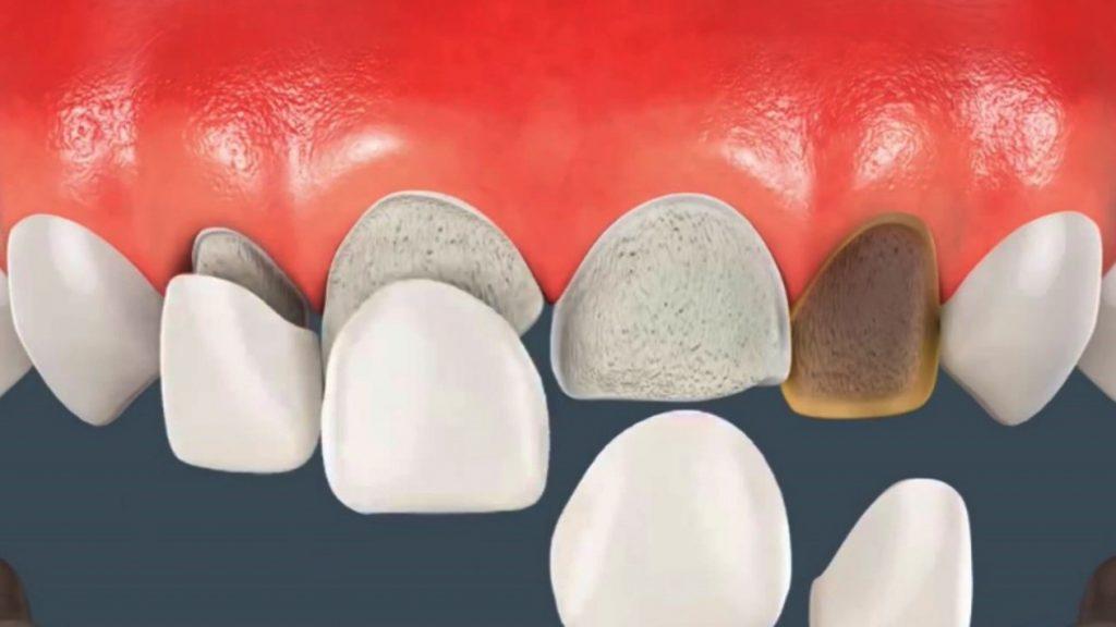 موارد استفاده لمینت دندان