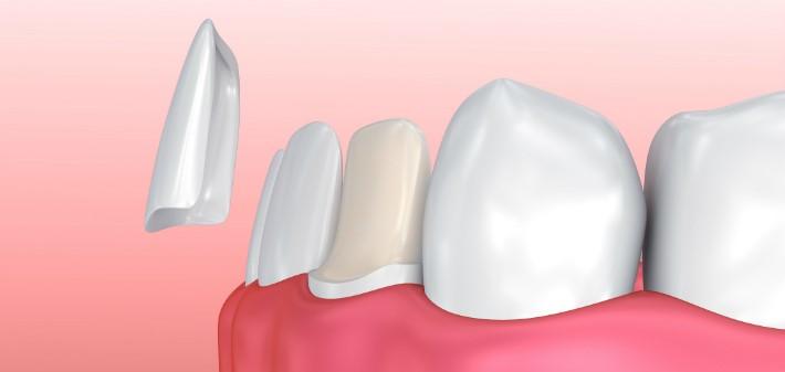 دندان چگونه لمینت می شود