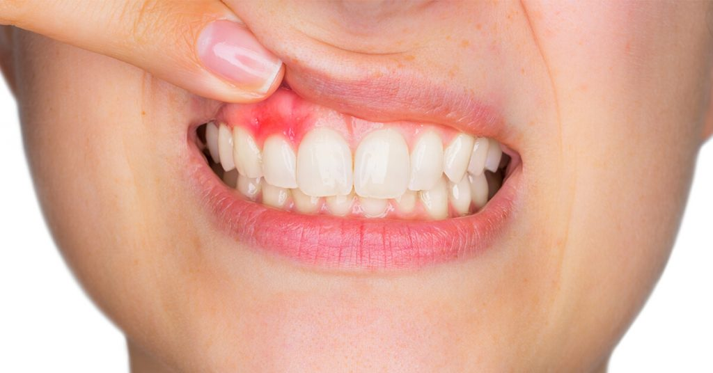 انواع آبسه دندان
