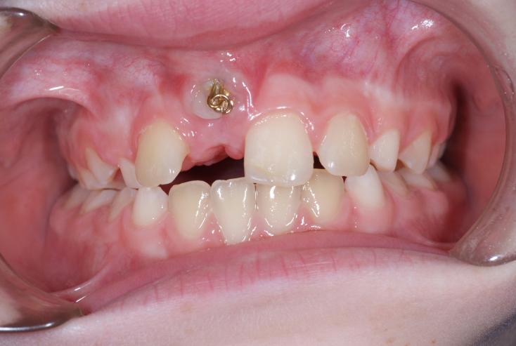 آشکار سازی دندان نهفته