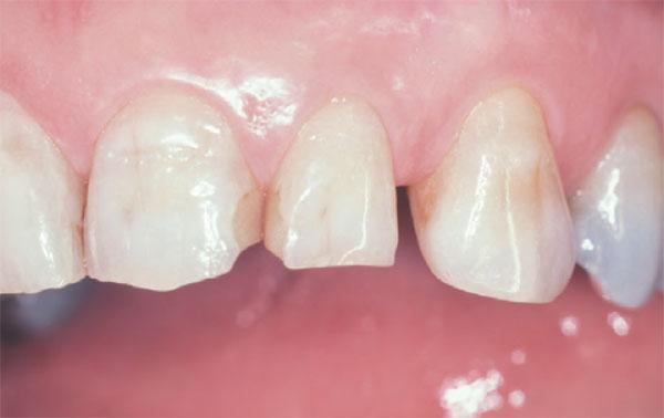 درمان چرخش و نامرتبی دندان ها