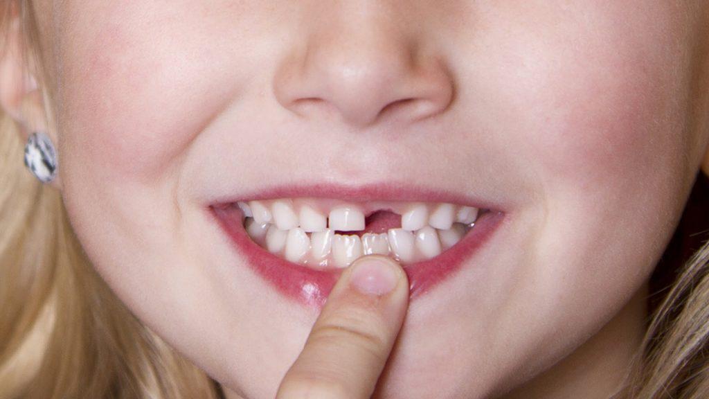 مراقبت های پس از کشیدن دندان