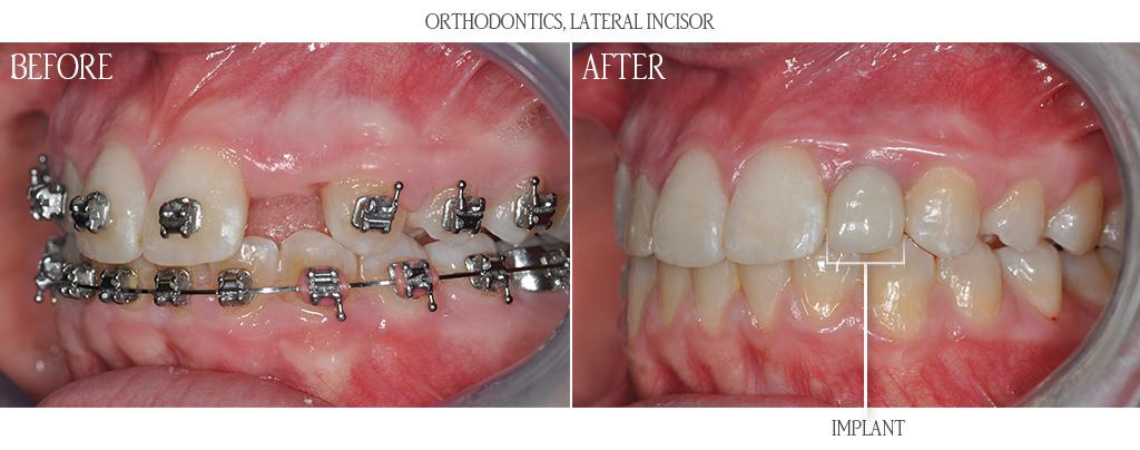 ارتودنسی قبل یا پس از ایمپلنت دندان