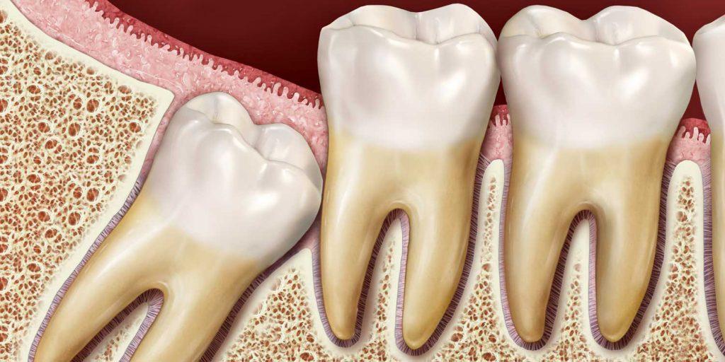 دندانهای عقل نهفته
