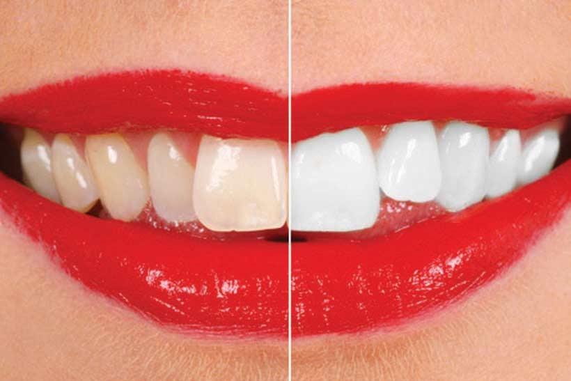 مواد سفید کننده دندان