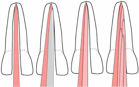 پر کردن دندان با مخروط گاتاپرچا