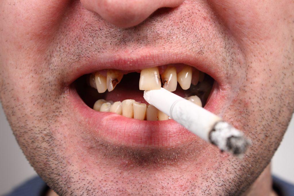 اثرات سیگار بر دندان