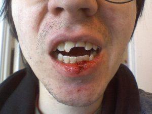 آسیب و شکستگی دندان