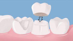 چه زمانی باید دندان ها را روکش کنیم