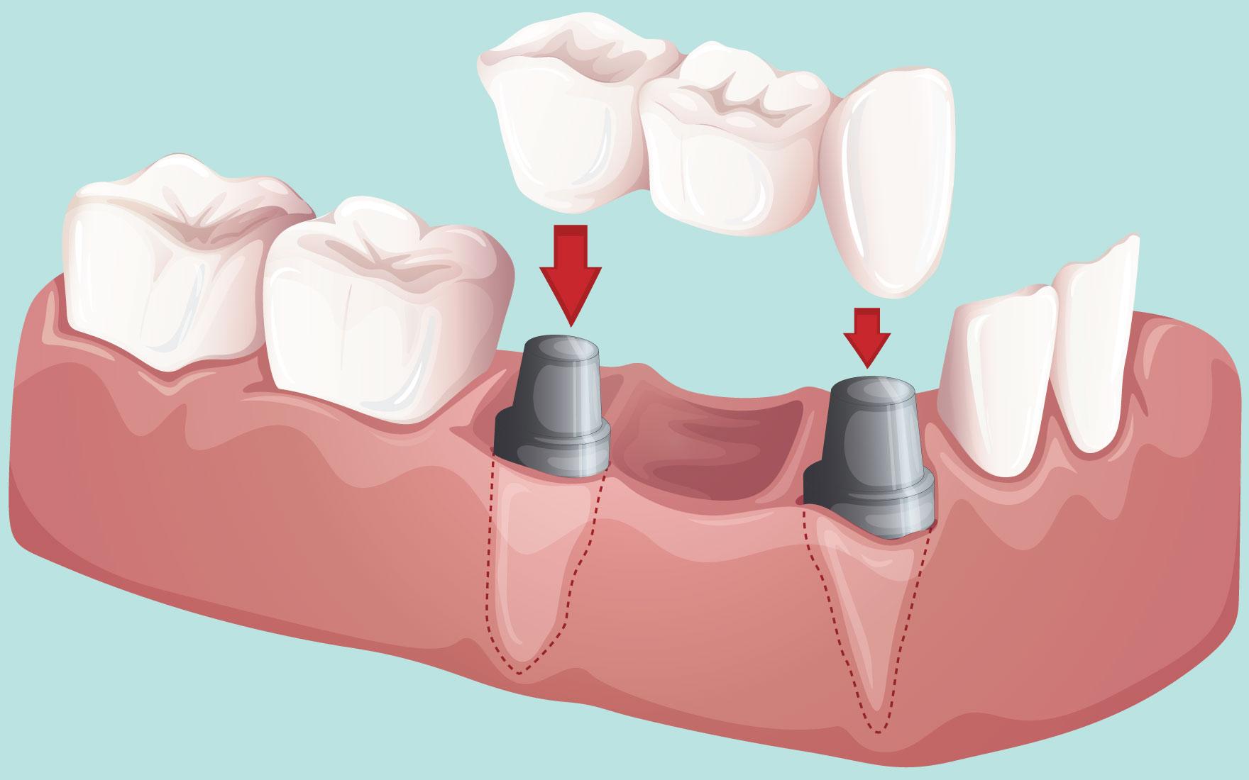 انواع بریج های دندان