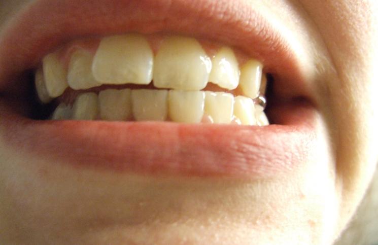 پلاک دندان