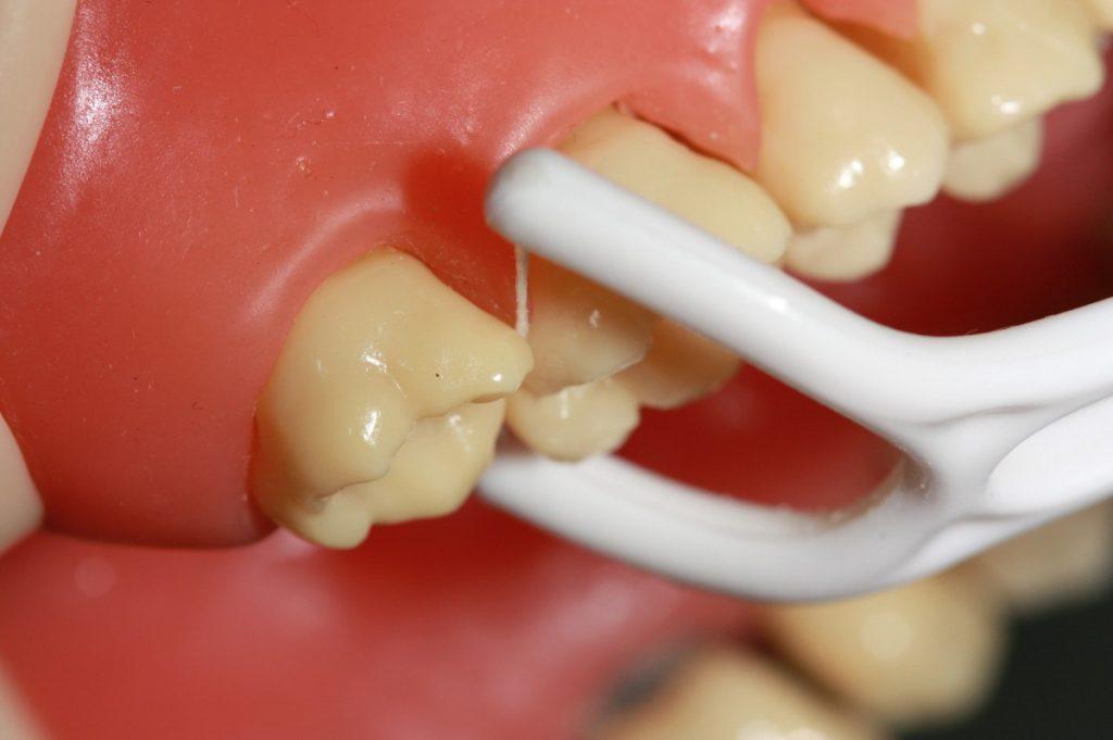 انواع نخ دندان