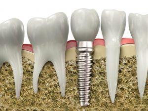 فایده ایمپلنت های دندان چیست