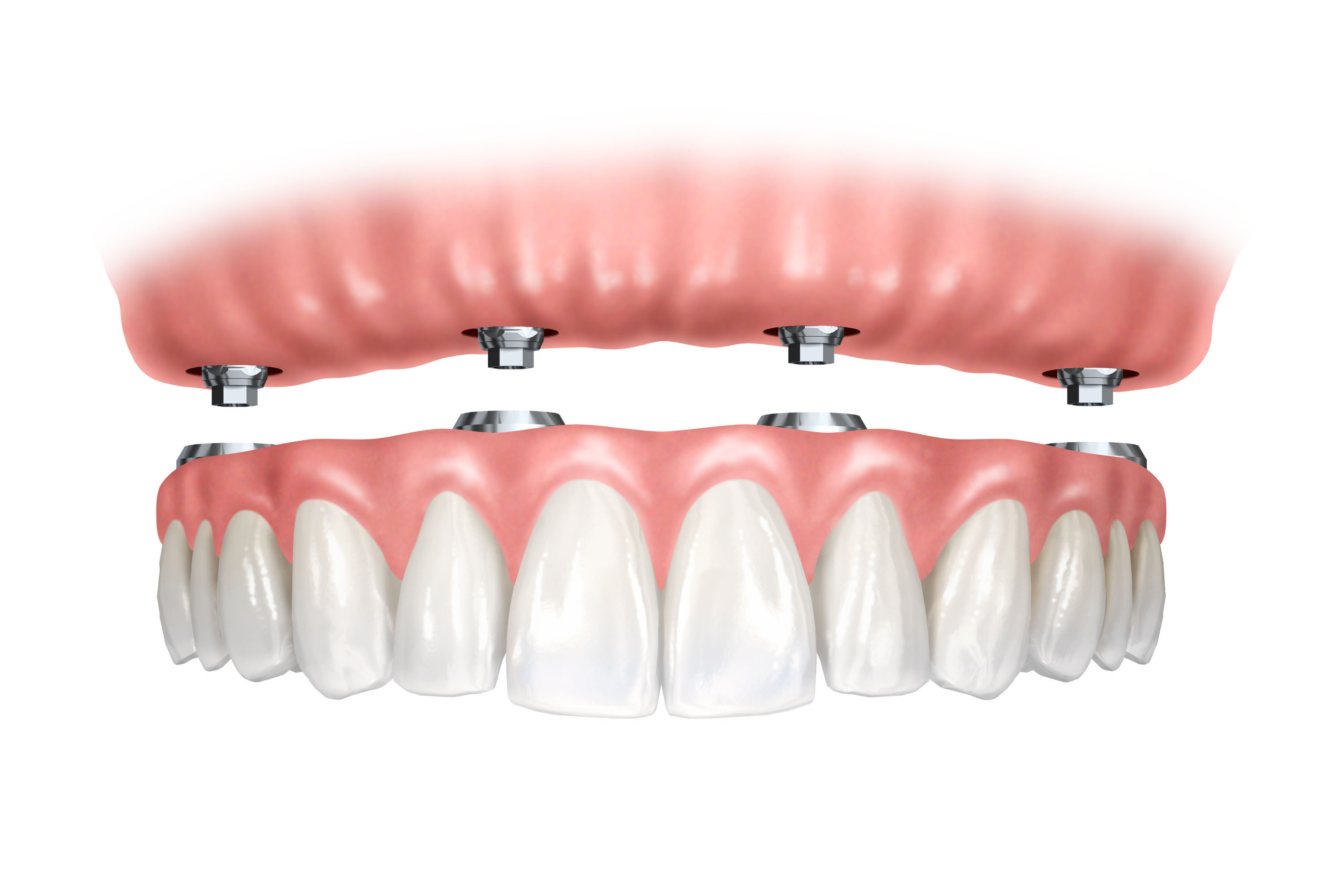 انواع پروتز های دندان