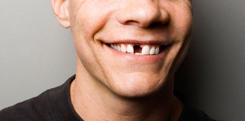 بی دندانی