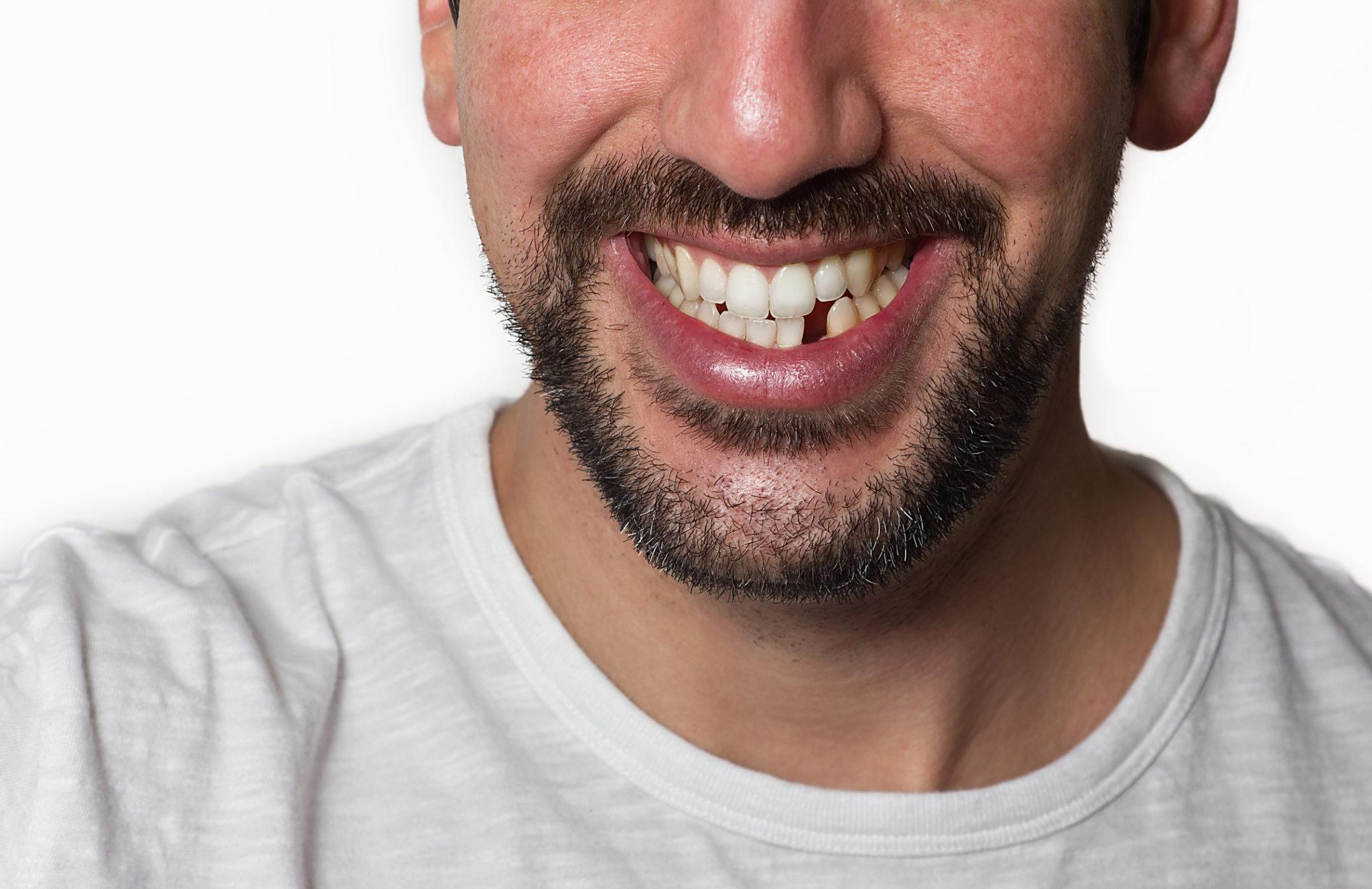 چرا نیاز است دندان از دست رفته را ایمپلنت کرد