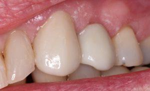 درد تاج دندان