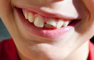 شکستن دندان